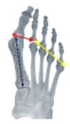 shorten a long metatarsal with osteo-WEDGE